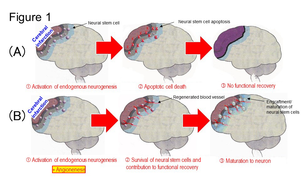 Angiogenesis and neurogenesis after stroke